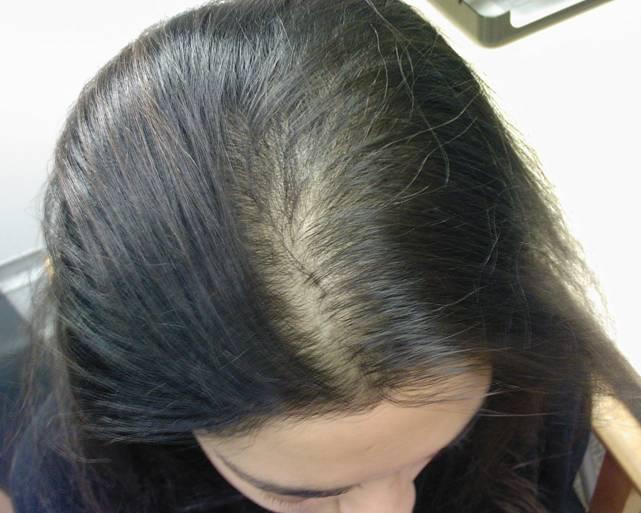 علاج-الشعر-الخفيف